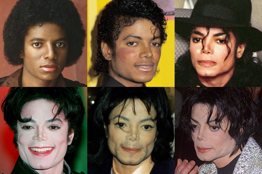 Michael Jackson - Plastische chirurgie (lifeandstylemag.com)